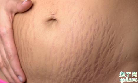 怀孕没妊娠纹产后有了怎么回事 产后健身过度会导致妊娠纹吗2