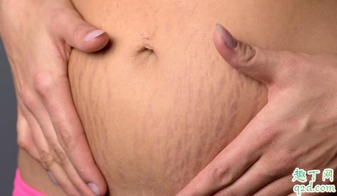 怀孕没妊娠纹产后有了怎么回事 产后健身过度会导致妊娠纹吗4