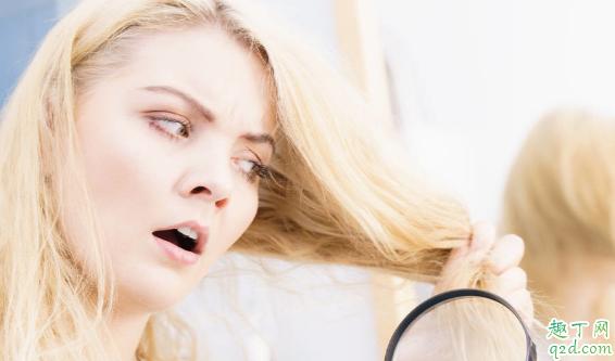 爽身粉涂头发能去油吗 头发怎么才能不油腻3