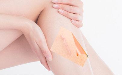 硅酮凝胶去疤效果好吗 硅酮凝胶最佳使用时间是什么