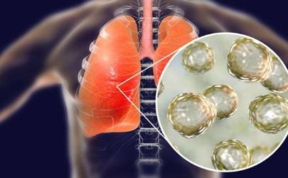 武汉新型冠状病毒有什么症状 武汉不明肺炎的症状有哪些