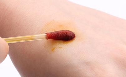 碘伏擦伤口会留颜色吗