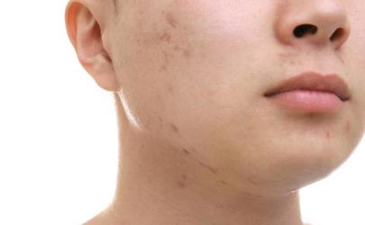为什么运动后毛孔粗大