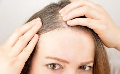 洗头加阿莫西林去白发有科学依据吗
