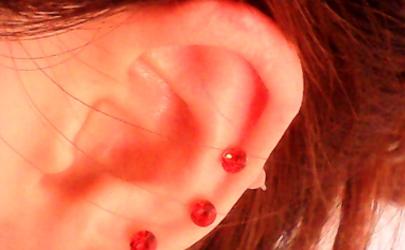 打完耳洞两个月起血泡了怎么办