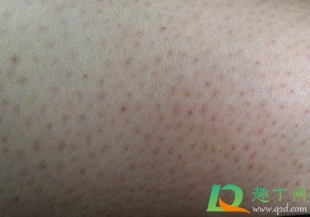 毛囊炎的图片是什么样子的3