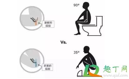 厕所堵了怎么通蹲便器4