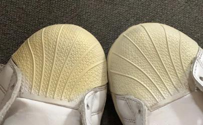鞋子橡胶发黄怎么变白