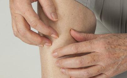 冬天大腿皮肤瘙痒正常吗