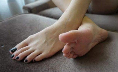 腳趾縫爛脫皮癢怎么辦