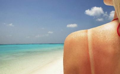 皮肤晒伤抹什么能缓解疼痛