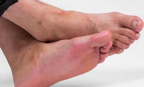 用热水泡脚为什么脚颜色变深插图2