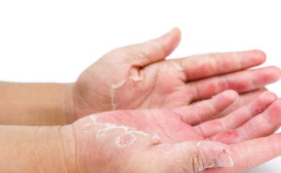 手脱皮补维生素c还是b