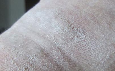 隐翅虫皮炎溃烂和水泡能清洗吗