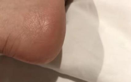 脚后跟硬皮用什么泡4