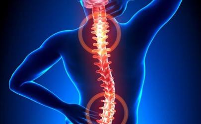 强直性脊柱炎一般寿命能治好吗