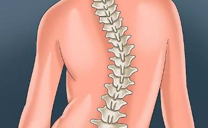 脊柱侧弯的四个自愈动作
