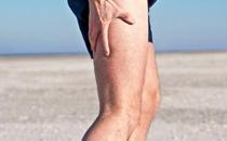 运动后肌肉酸痛怎么办 做完运动后有什么注意事项